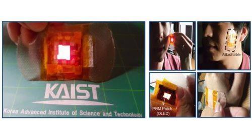 """光线疗法升级 韩国研究员发明""""OLED贴片"""""""